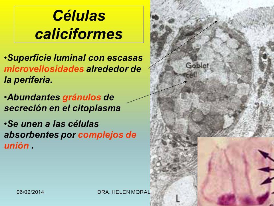 06/02/2014DRA. HELEN MORALES, USAC.27 Células caliciformes Superficie luminal con escasas microvellosidades alrededor de la periferia. Abundantes grán