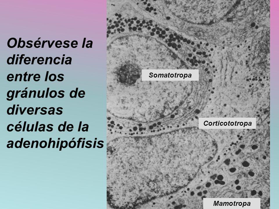 Obsérvese la diferencia entre los gránulos de diversas células de la adenohipófisis Somatotropa Corticototropa Mamotropa