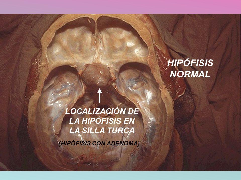 LOCALIZACIÓN DE LA HIPÓFISIS EN LA SILLA TURCA HIPÓFISIS NORMAL (HIPÓFISIS CON ADENOMA)