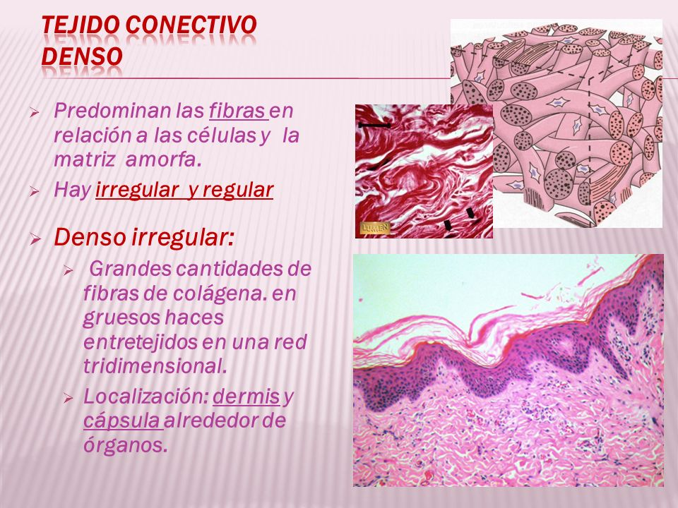 Predominan las fibras en relación a las células y la matriz amorfa. Hay irregular y regular Denso irregular: Grandes cantidades de fibras de colágena.