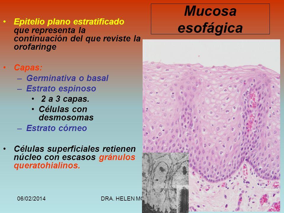 06/02/2014DRA. HELEN MORALES, USAC.21 Mucosa esofágica Epitelio plano estratificado que representa la continuación del que reviste la orofaringe Capas