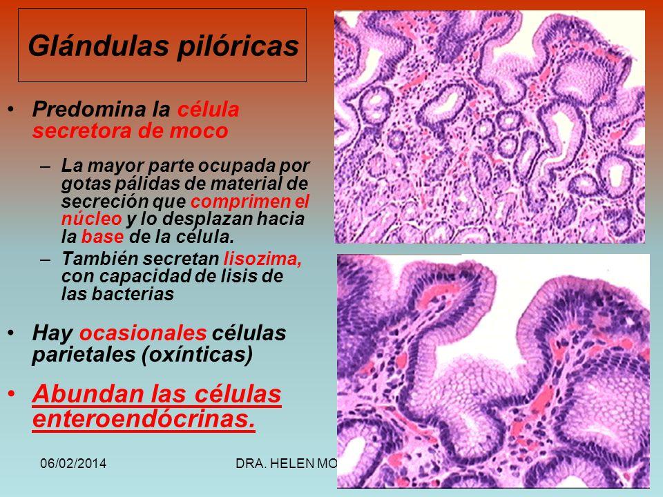 06/02/2014DRA. HELEN MORALES, USAC.51 Predomina la célula secretora de moco –La mayor parte ocupada por gotas pálidas de material de secreción que com