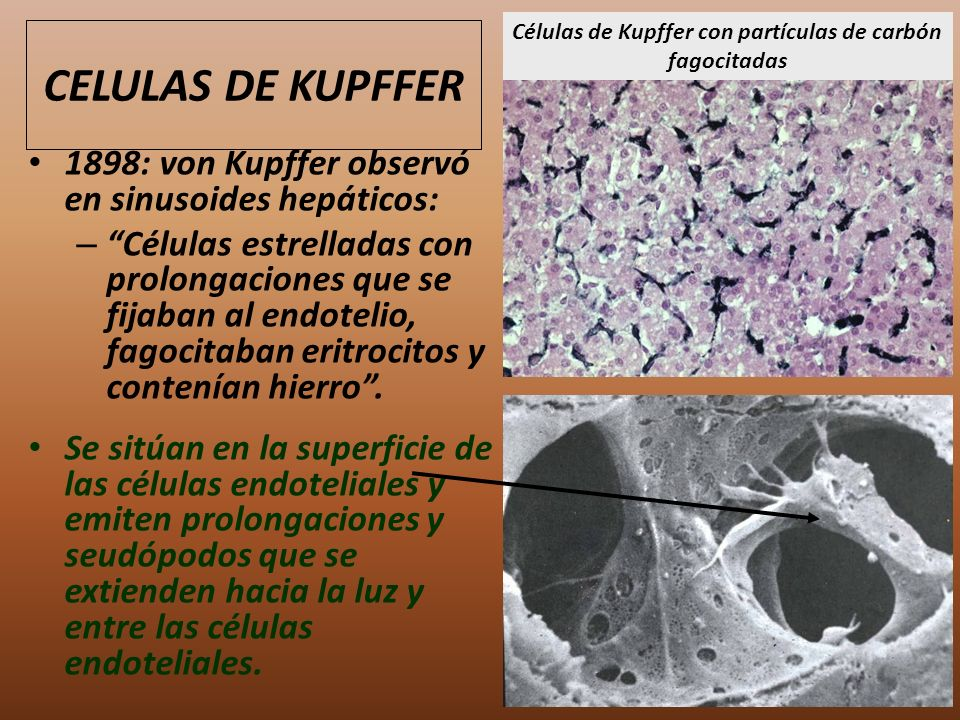 CELULAS DE KUPFFER 1898: von Kupffer observó en sinusoides hepáticos: – Células estrelladas con prolongaciones que se fijaban al endotelio, fagocitaba