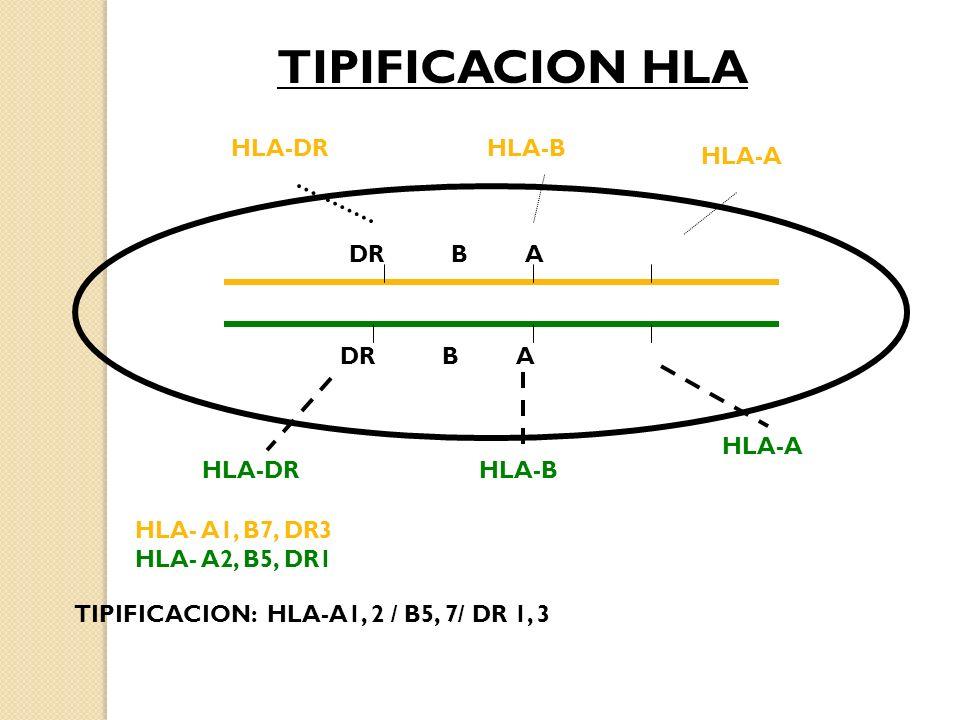 DR B A HLA-A HLA-BHLA-DR HLA-BHLA-DR HLA-A HLA- A1, B7, DR3 HLA- A2, B5, DR1 TIPIFICACION: HLA-A1, 2 / B5, 7/ DR 1, 3 TIPIFICACION HLA