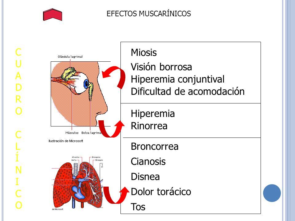 EFECTOS MUSCARÍNICOS Miosis Visión borrosa Hiperemia conjuntival Dificultad de acomodación CUADROCLÍNICOCUADROCLÍNICO Hiperemia Rinorrea Broncorrea Ci