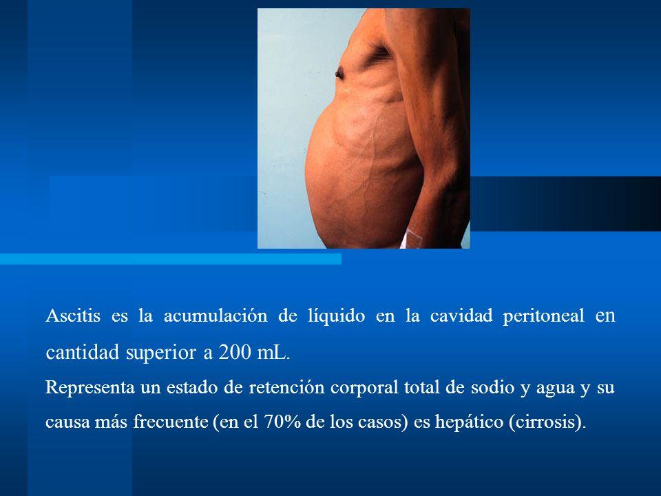 Ascitis es la acumulación de líquido en la cavidad peritoneal en cantidad superior a 200 mL. Representa un estado de retención corporal total de sodio