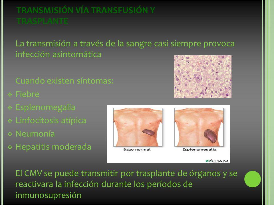 TRANSMISIÓN VÍA TRANSFUSIÓN Y TRASPLANTE La transmisión a través de la sangre casi siempre provoca infección asintomática Cuando existen síntomas: Fie