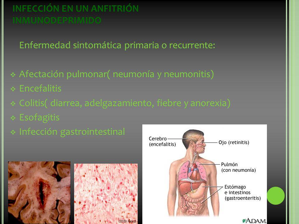 INFECCIÓN EN UN ANFITRIÓN INMUNODEPRIMIDO Enfermedad sintomática primaria o recurrente: Afectación pulmonar( neumonía y neumonitis) Encefalitis Coliti