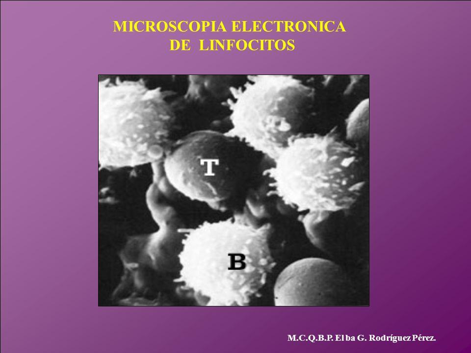 MICROSCOPIA ELECTRONICA DE LINFOCITOS M.C.Q.B.P. El ba G. Rodríguez Pérez.