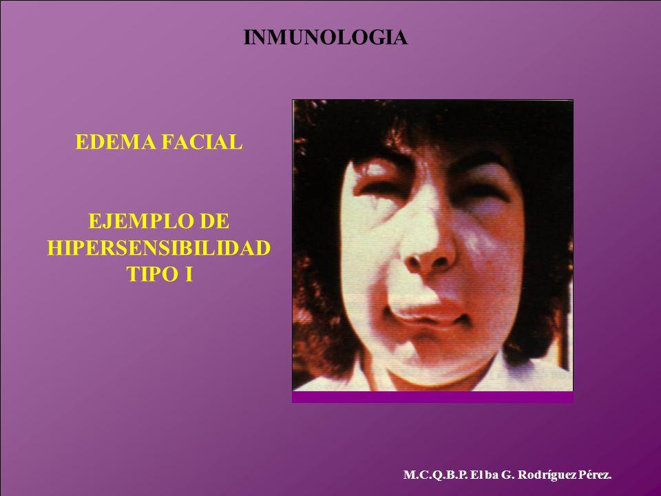 INMUNOLOGIA M.C.Q.B.P. El ba G. Rodríguez Pérez. EDEMA FACIAL EJEMPLO DE HIPERSENSIBILIDAD TIPO I