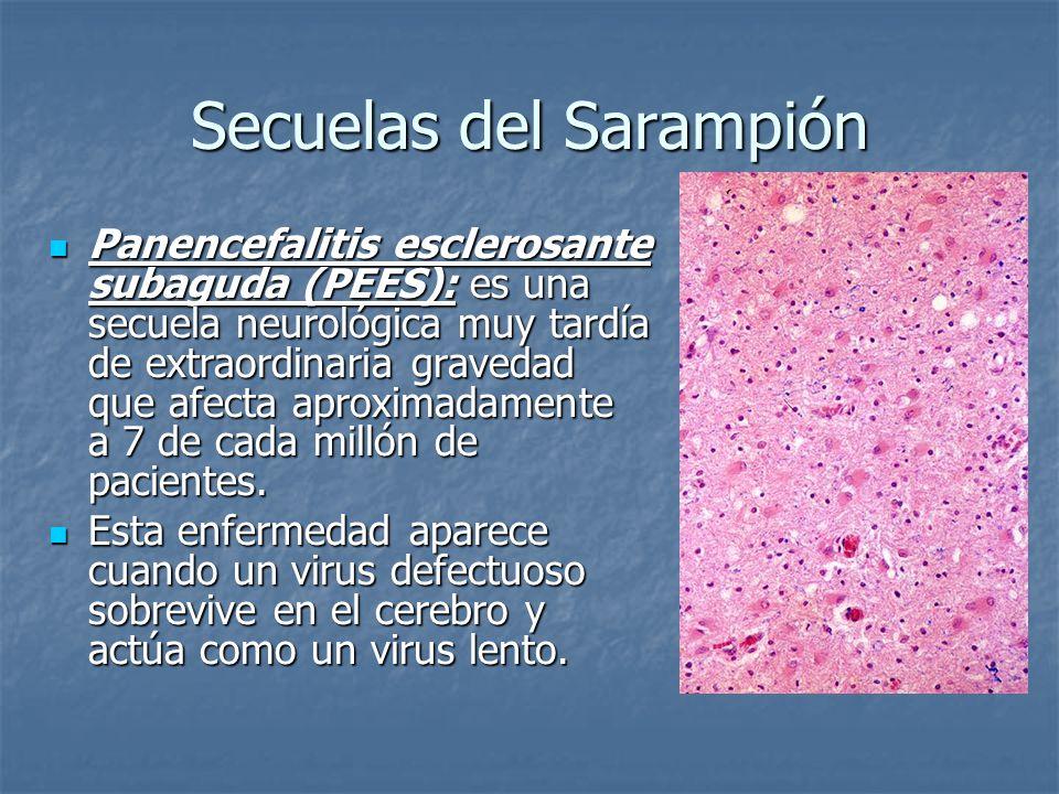 Secuelas del Sarampión Panencefalitis esclerosante subaguda (PEES): es una secuela neurológica muy tardía de extraordinaria gravedad que afecta aproxi