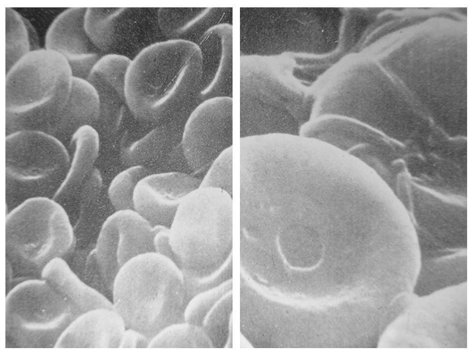 ERITROCITO PLAQUETA granulo alfa: fibrinogeno, tromboplastina y factor de coagulacion… facilita reparacion de vasos, agregacion plaquetaria y coagulacion delta: calcio, ATP, ADP, histamina, serotonina...