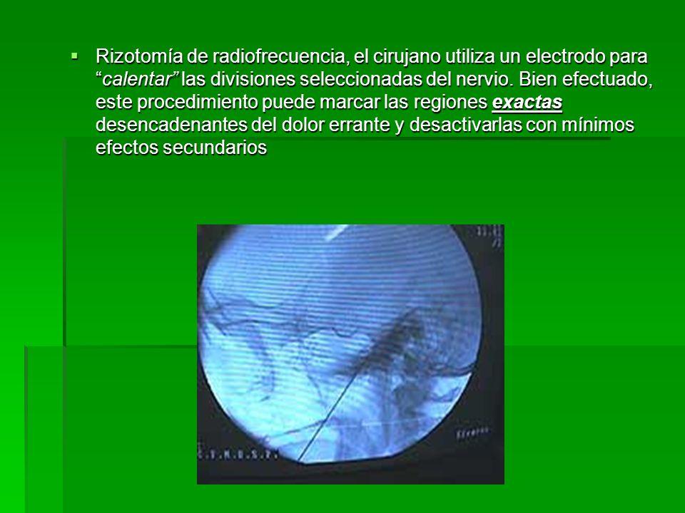 Rizotomía de radiofrecuencia, el cirujano utiliza un electrodo paracalentar las divisiones seleccionadas del nervio. Bien efectuado, este procedimient