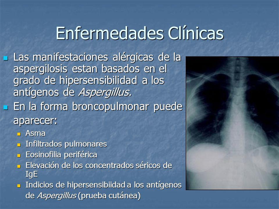 Enfermedades Clínicas Las manifestaciones alérgicas de la aspergilosis estan basados en el grado de hipersensibilidad a los antígenos de Aspergillus.