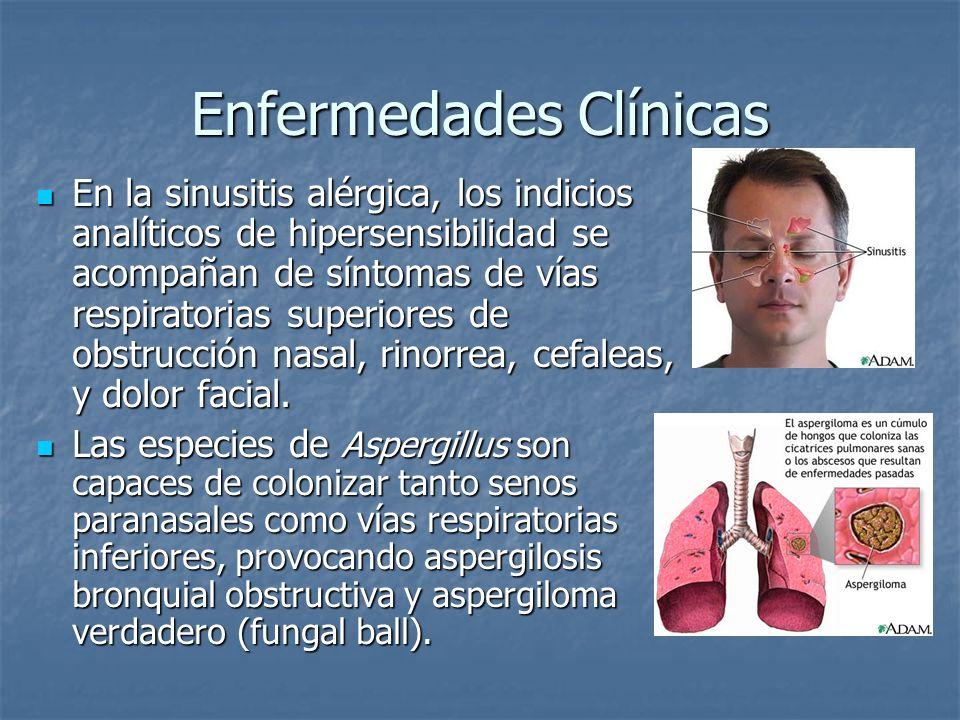 Enfermedades Clínicas En la sinusitis alérgica, los indicios analíticos de hipersensibilidad se acompañan de síntomas de vías respiratorias superiores