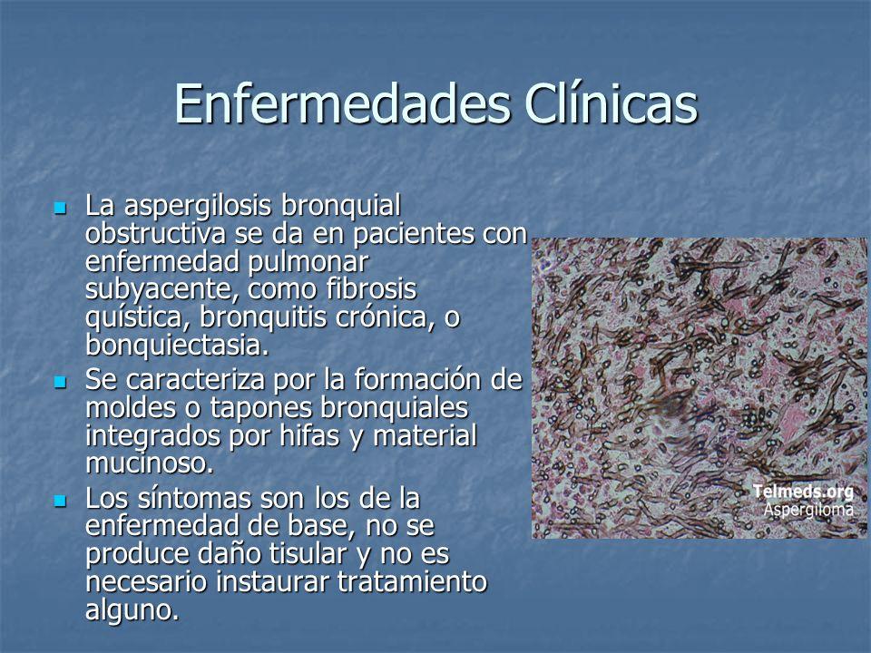 Enfermedades Clínicas La aspergilosis bronquial obstructiva se da en pacientes con enfermedad pulmonar subyacente, como fibrosis quística, bronquitis