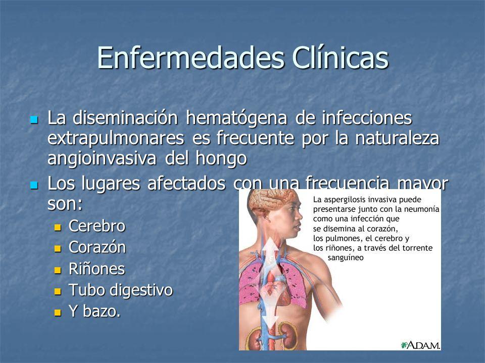 Enfermedades Clínicas La diseminación hematógena de infecciones extrapulmonares es frecuente por la naturaleza angioinvasiva del hongo La diseminación