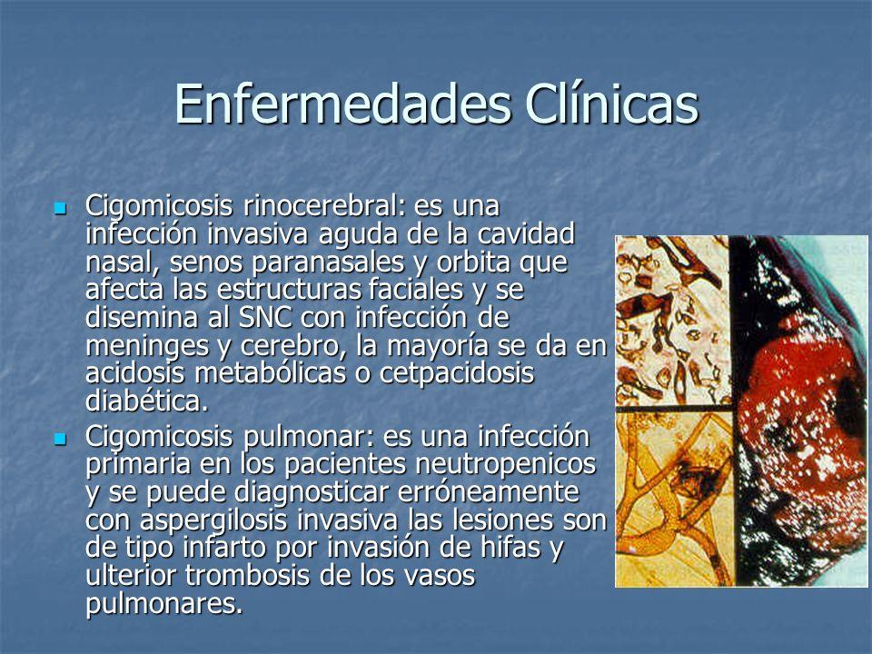 Enfermedades Clínicas Cigomicosis rinocerebral: es una infección invasiva aguda de la cavidad nasal, senos paranasales y orbita que afecta las estruct