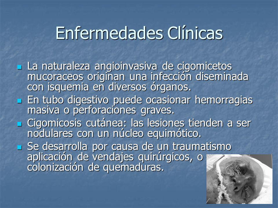 Enfermedades Clínicas La naturaleza angioinvasiva de cigomicetos mucoraceos originan una infección diseminada con isquemia en diversos órganos. La nat