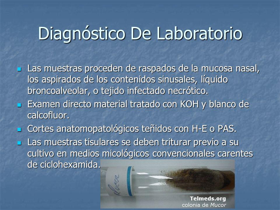 Diagnóstico De Laboratorio Las muestras proceden de raspados de la mucosa nasal, los aspirados de los contenidos sinusales, líquido broncoalveolar, o