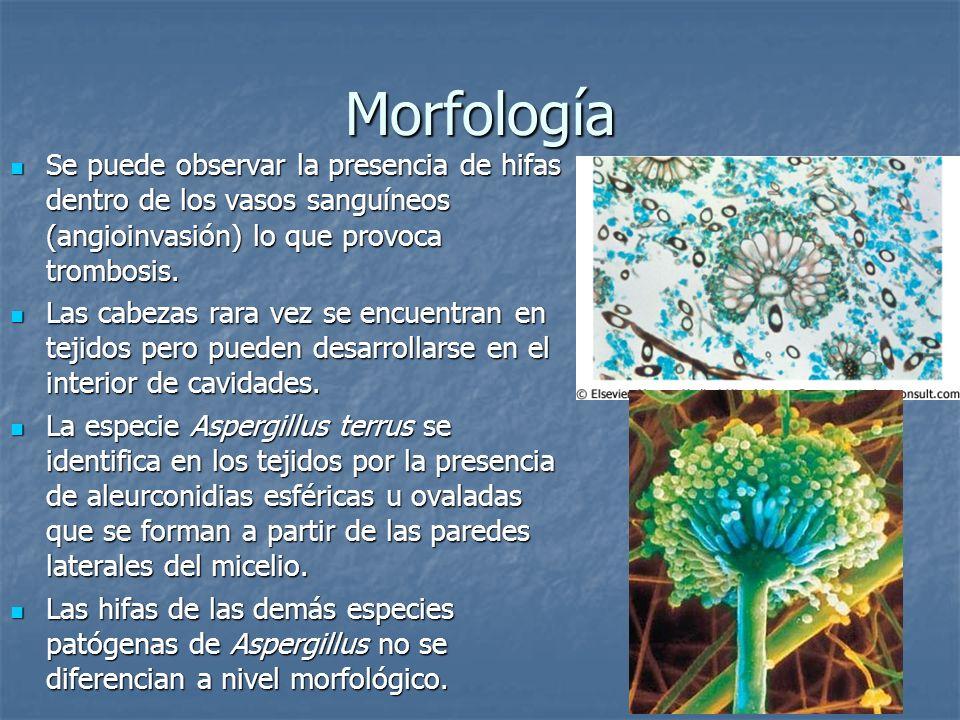 Morfología Se puede observar la presencia de hifas dentro de los vasos sanguíneos (angioinvasión) lo que provoca trombosis. Se puede observar la prese