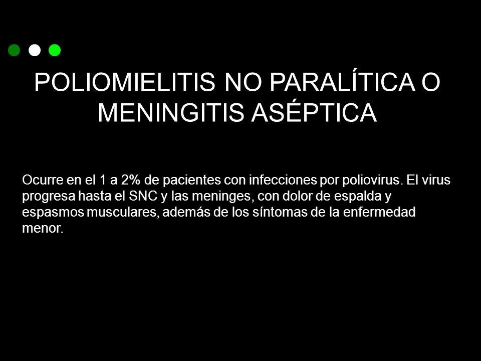 POLIOMIELITIS NO PARALÍTICA O MENINGITIS ASÉPTICA Ocurre en el 1 a 2% de pacientes con infecciones por poliovirus. El virus progresa hasta el SNC y la