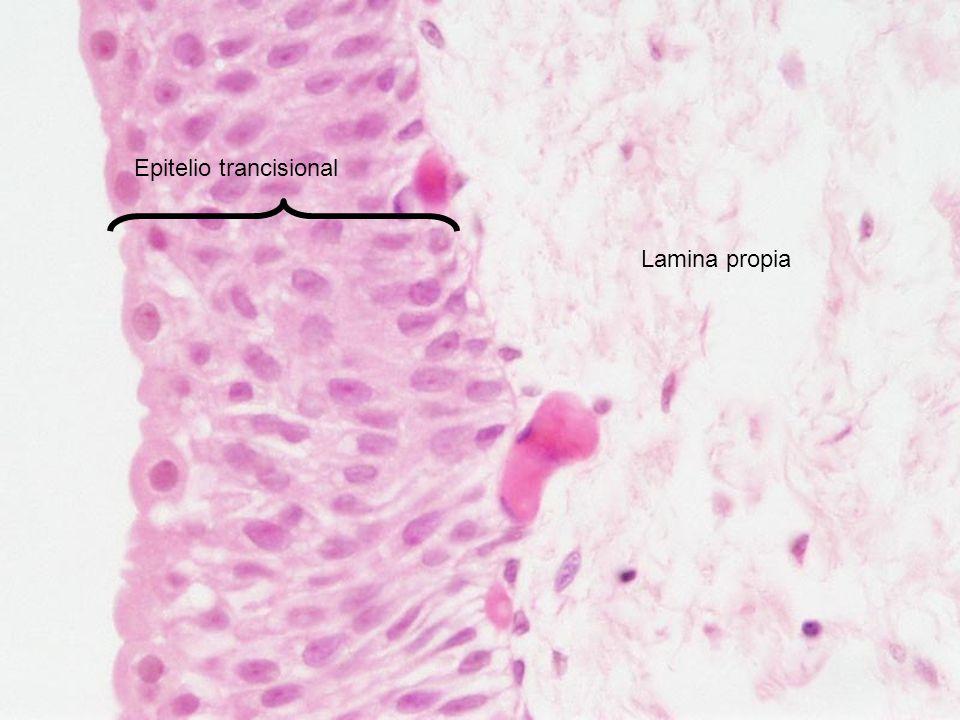 Epitelio trancisional Lamina propia