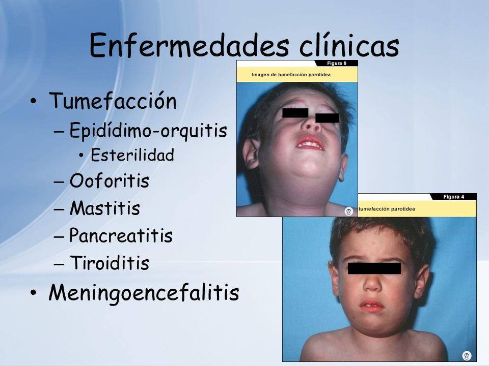 Enfermedades clínicas Tumefacción – Epidídimo-orquitis Esterilidad – Ooforitis – Mastitis – Pancreatitis – Tiroiditis Meningoencefalitis