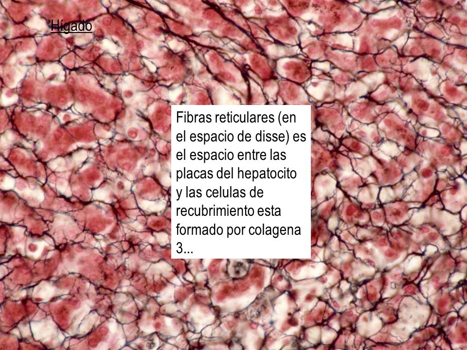 Hígado Fibras reticulares (en el espacio de disse) es el espacio entre las placas del hepatocito y las celulas de recubrimiento esta formado por colag