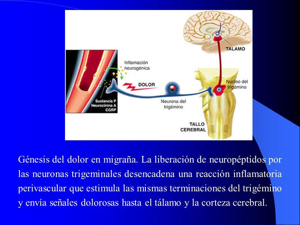 Génesis del dolor en migraña. La liberación de neuropéptidos por las neuronas trigeminales desencadena una reacción inflamatoria perivascular que esti