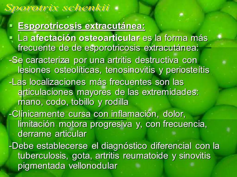Esporotricosis extracutánea: Esporotricosis extracutánea: La afectación osteoarticular es la forma más frecuente de de esporotricosis extracutánea: La