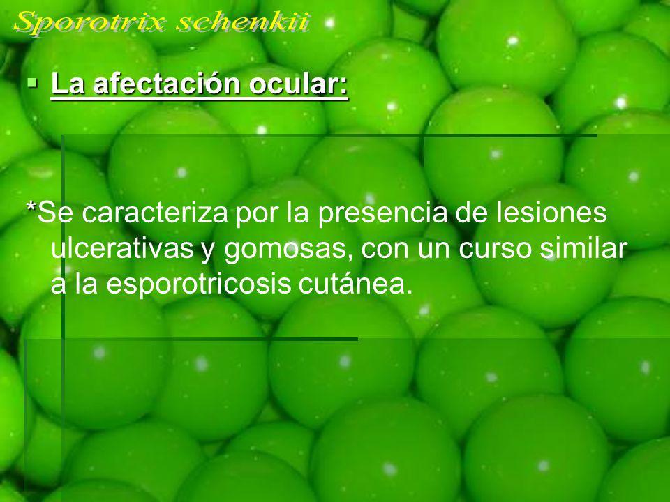 La afectación ocular: La afectación ocular: * *Se caracteriza por la presencia de lesiones ulcerativas y gomosas, con un curso similar a la esporotric
