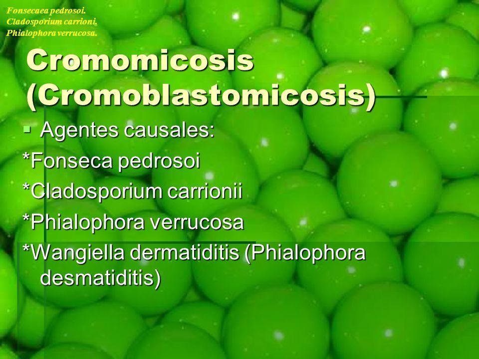 Cromomicosis (Cromoblastomicosis) Agentes causales: Agentes causales: *Fonseca pedrosoi *Cladosporium carrionii *Phialophora verrucosa *Wangiella derm