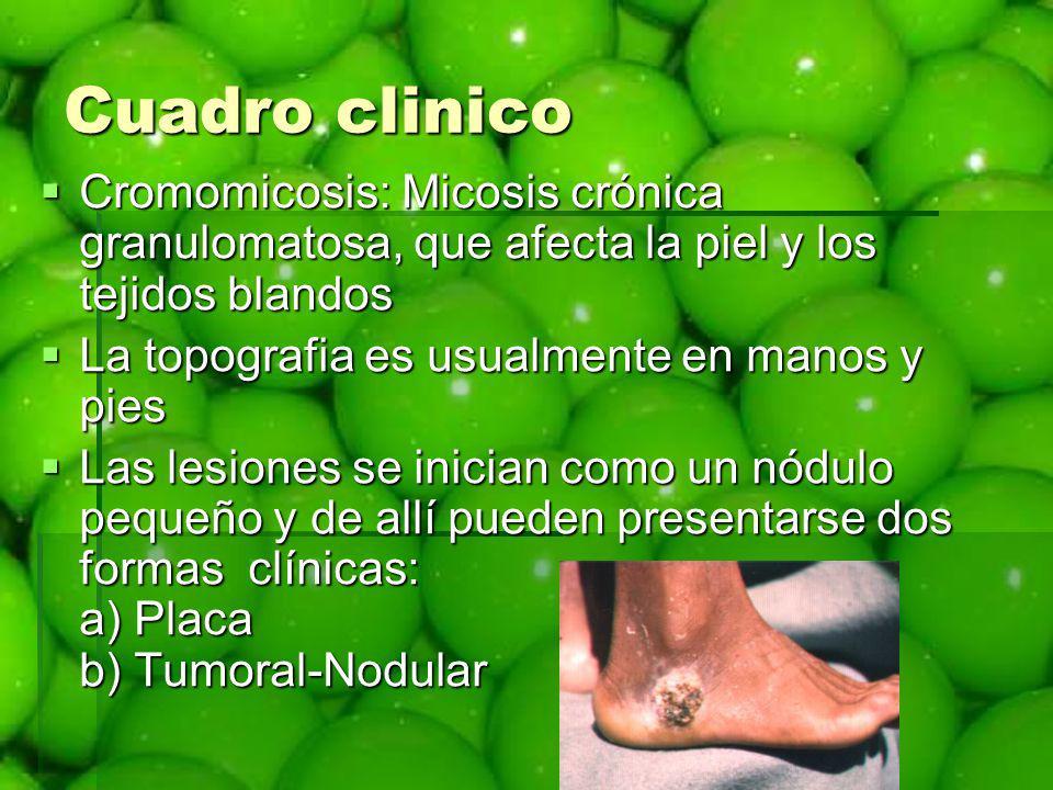 Cuadro clinico Cromomicosis: Micosis crónica granulomatosa, que afecta la piel y los tejidos blandos Cromomicosis: Micosis crónica granulomatosa, que
