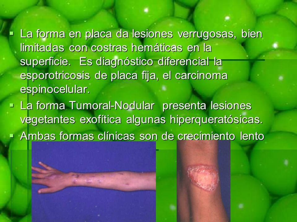 La forma en placa da lesiones verrugosas, bien limitadas con costras hemáticas en la superficie. Es diagnóstico diferencial la esporotricosis de placa