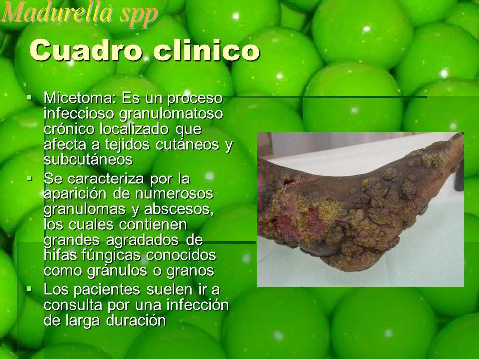 Cuadro clinico Micetoma: Es un proceso infeccioso granulomatoso crónico localizado que afecta a tejidos cutáneos y subcutáneos Micetoma: Es un proceso