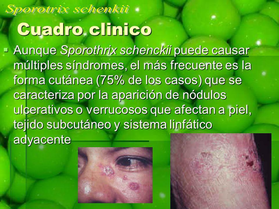 Cuadro clinico Aunque Sporothrix schenckii puede causar múltiples síndromes, el más frecuente es la forma cutánea (75% de los casos) que se caracteriz