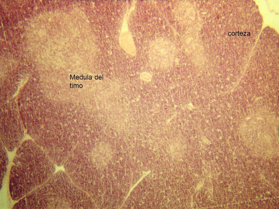 Medula del timo corteza