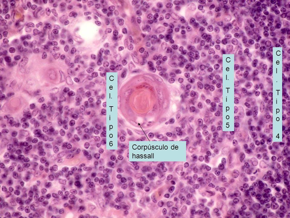 MEDULA DEL TIMO: Linfocitos T maduros o inocentes; hay otros 3 tipos de cel endoteliales reticulares tipo 4, 5 y 6. Corpúsculo de hassall Cel.Tipo 4Ce