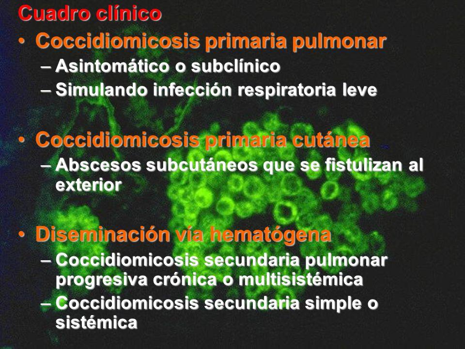 Cuadro clínico Coccidiomicosis primaria pulmonarCoccidiomicosis primaria pulmonar –Asintomático o subclínico –Simulando infección respiratoria leve Co