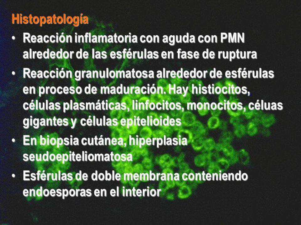 Histopatología Reacción inflamatoria con aguda con PMN alrededor de las esférulas en fase de ruptura Reacción inflamatoria con aguda con PMN alrededor