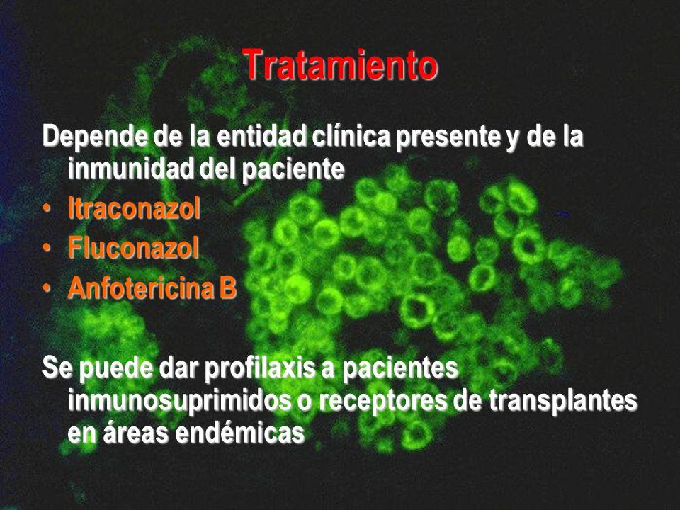 Tratamiento Depende de la entidad clínica presente y de la inmunidad del paciente Itraconazol Itraconazol Fluconazol Fluconazol Anfotericina B Anfoter
