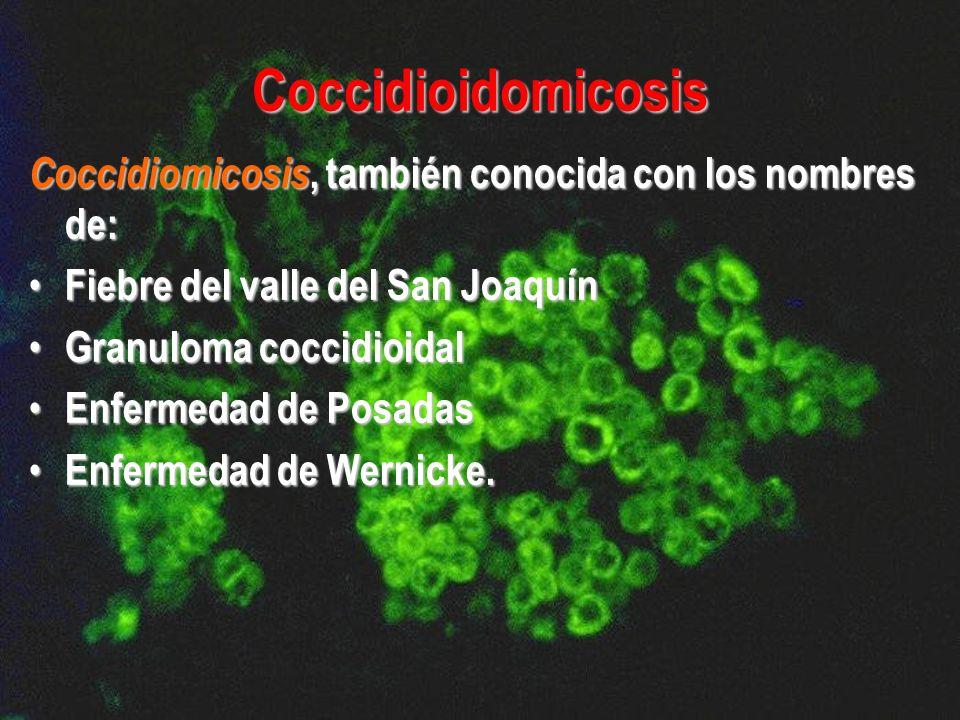 Coccidiomicosis, también conocida con los nombres de: Fiebre del valle del San Joaquín Fiebre del valle del San Joaquín Granuloma coccidioidal Granulo