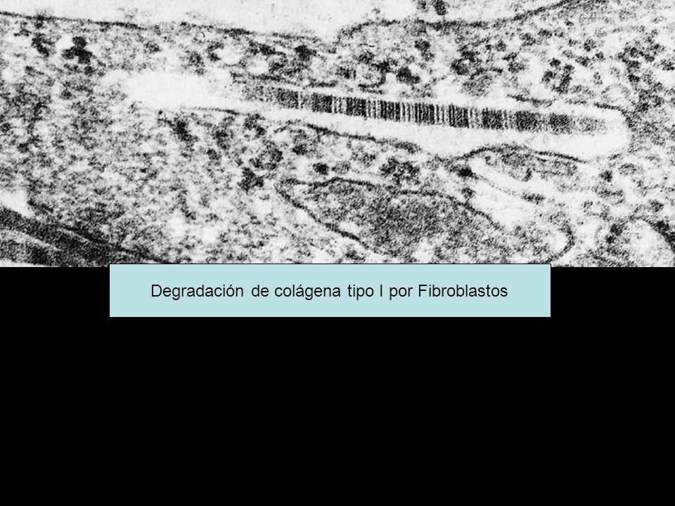 Degradación de colágena tipo I por Fibroblastos