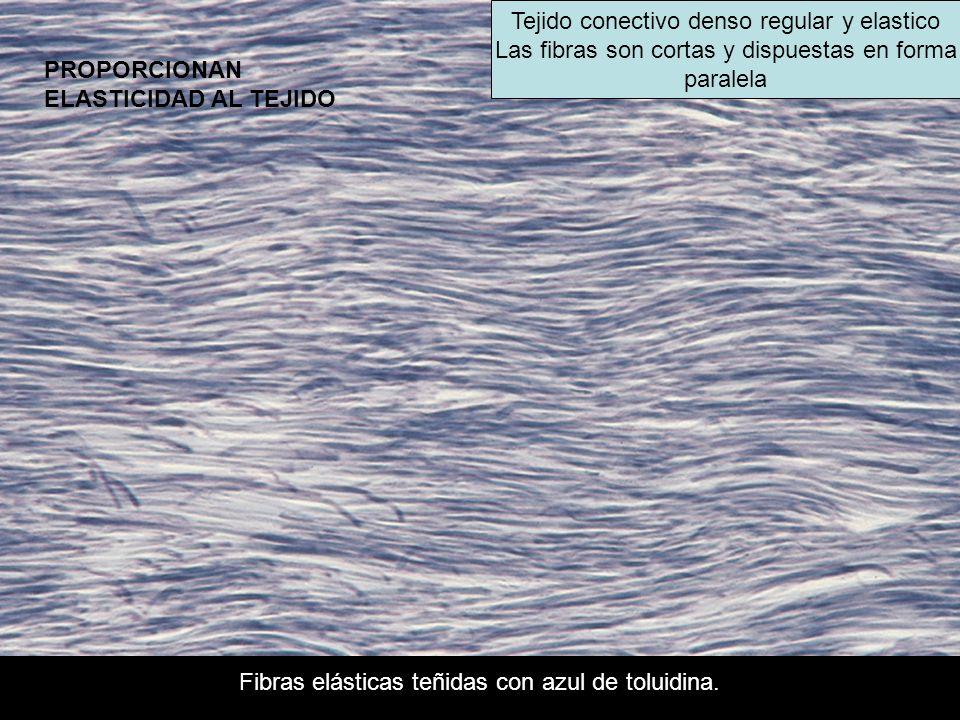 Fibras elásticas teñidas con azul de toluidina. Tejido conectivo denso regular y elastico Las fibras son cortas y dispuestas en forma paralela PROPORC