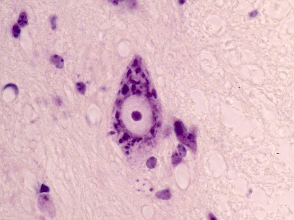 Fibras de colagena del perineurio en nervio ciatico de rata