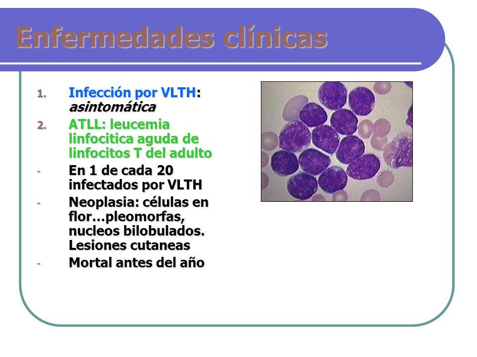 Enfermedades clínicas 1. Infección por VLTH: asintomática 2. ATLL: leucemia linfocitica aguda de linfocitos T del adulto - En 1 de cada 20 infectados