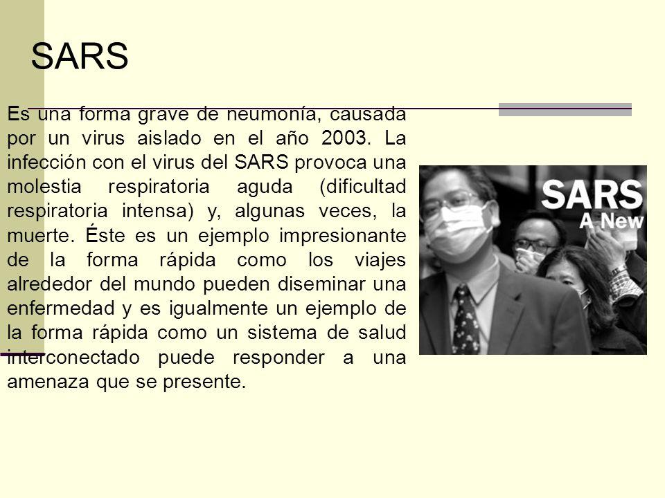 Es una forma grave de neumonía, causada por un virus aislado en el año 2003. La infección con el virus del SARS provoca una molestia respiratoria agud