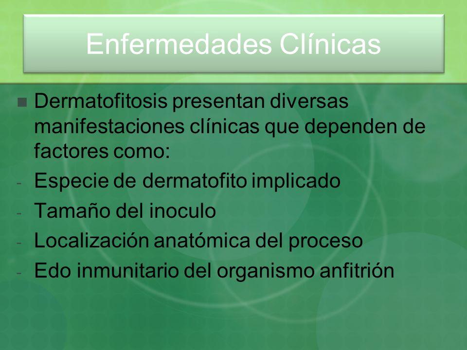 Enfermedades Clínicas Dermatofitosis presentan diversas manifestaciones clínicas que dependen de factores como: - Especie de dermatofito implicado - T