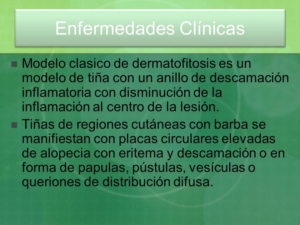 Modelo clasico de dermatofitosis es un modelo de tiña con un anillo de descamación inflamatoria con disminución de la inflamación al centro de la lesi